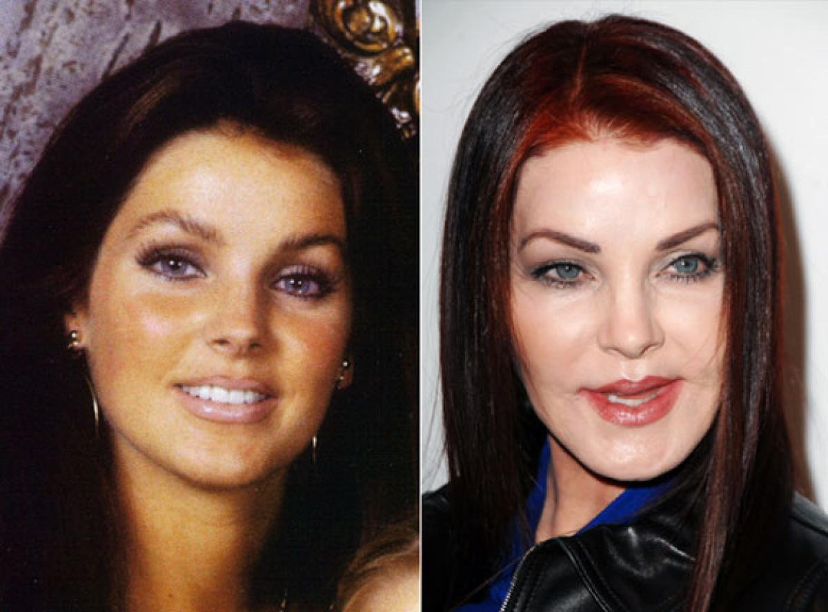 Botched Bodies 10 Celebrities Ruined By Plastic Surgery